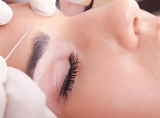 O Botox vai mudar a minha expressão facial?