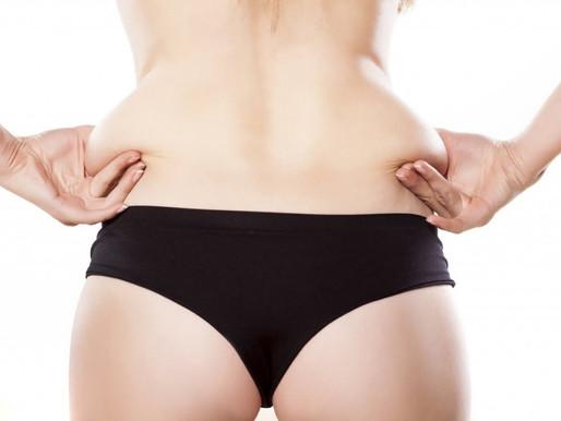 Abdominoplastia após a gravidez, é recomendado?