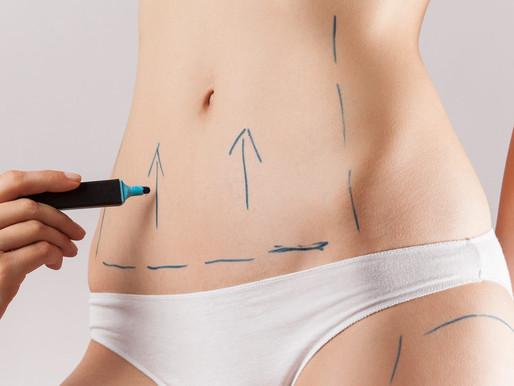Abdominoplastia + Lipoaspiração: Pode ou não pode?