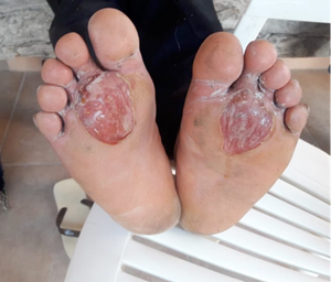 The feet of a 54-year-old Mexican migrant after eight days of trying to cross the desert, in Altar, Mexico, August 2019. Paola Díaz, Author provided