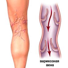 Варикоз лазерное лечение в Клинике Хирургии ДонНМУ г. Дружковка