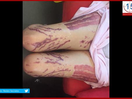Sin cifras sobre ataques con ácido en México