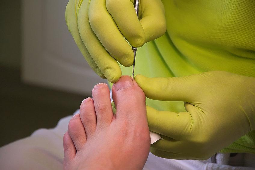 foot-care-3557103_1920.jpg