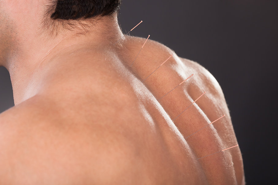 Close-up Of A Shirtless Man With Acupuncture Needles On Back