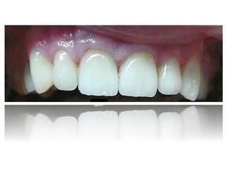 Estetica dentară