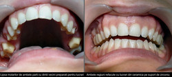 Tratt. bilaterale ossido di zirconio