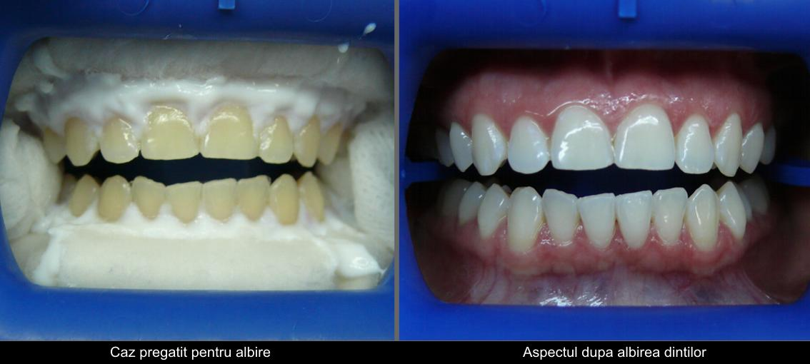 Another case of whitening