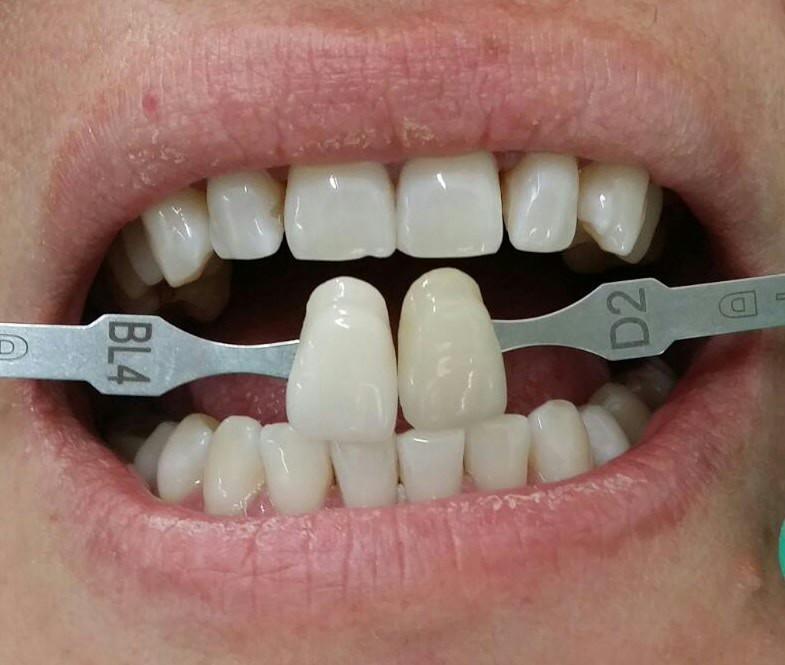 Culoarea finală a dinților după albire.