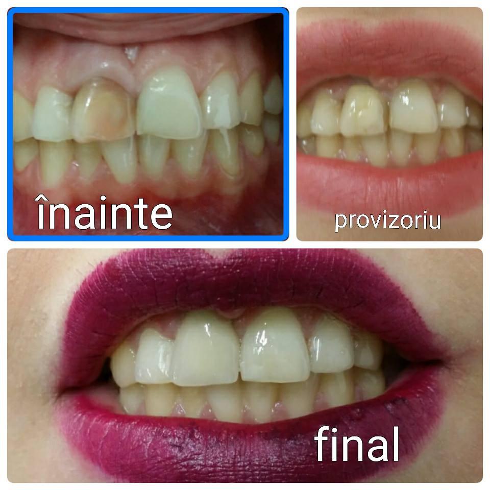 Un zâmbet - înainte și după - la Para-Luxadent