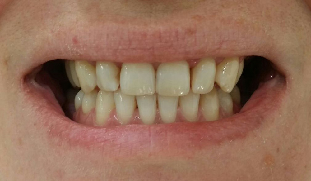 Culoarea inițială a dinților.