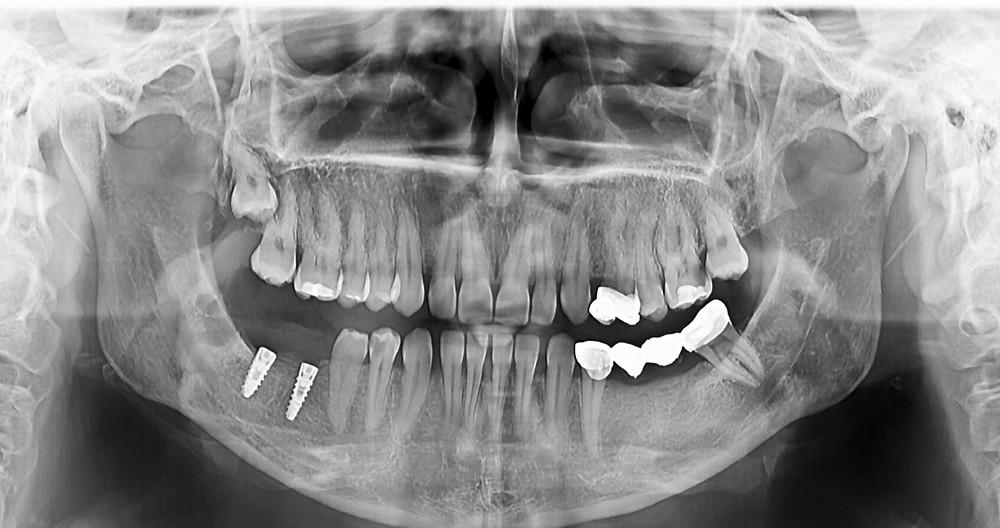 Aspect radiografic al implantelor inserate