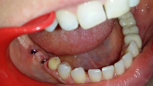 Edentație (lipsa dinților) pe partea dreaptă inferior, rezolvată cu implante și punte dentară cerami