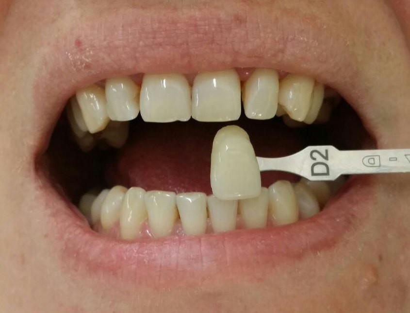 Stabilirea culorii inițiale a dinților