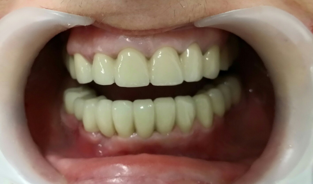 Lucrări dentare finale metalo-acrilice