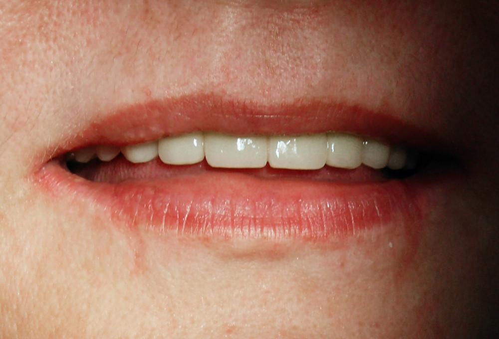 Estetică dentară PARA-LUXADENT