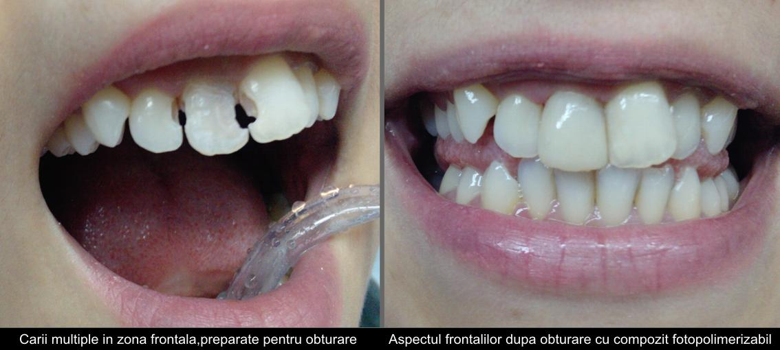 Multiple front cavities