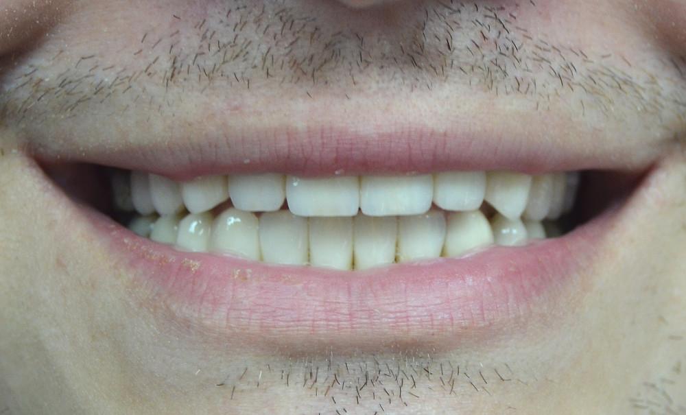 Estetică dentară, zâmbet