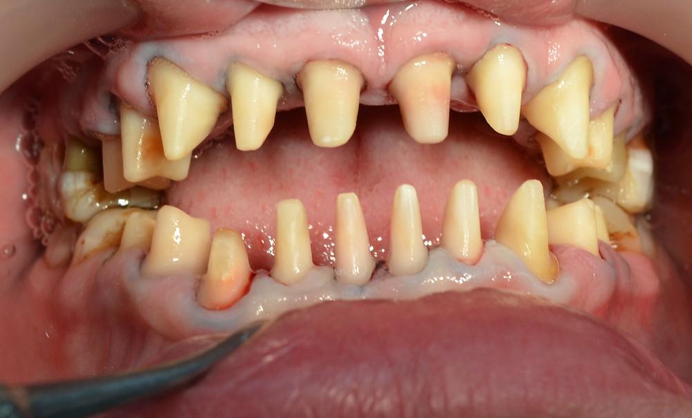 Șlefuire dentară