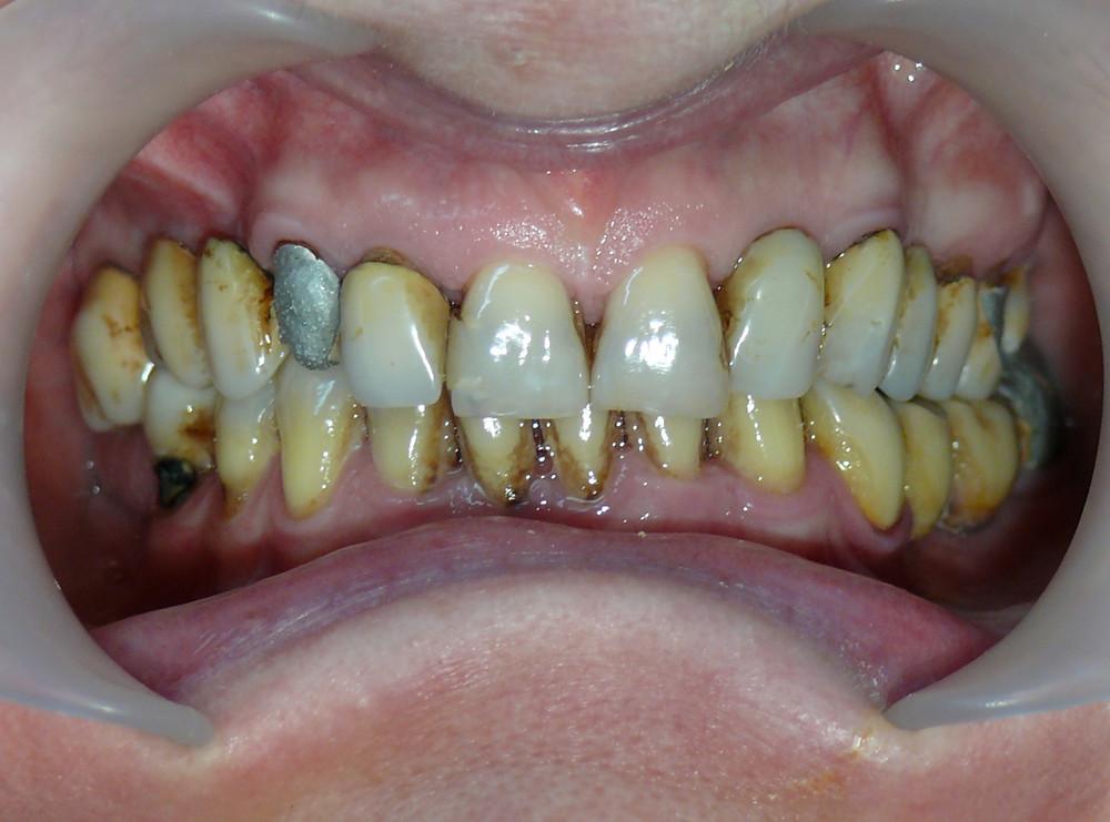 Lucrări defectuoase, carii, pete dentare inestetice