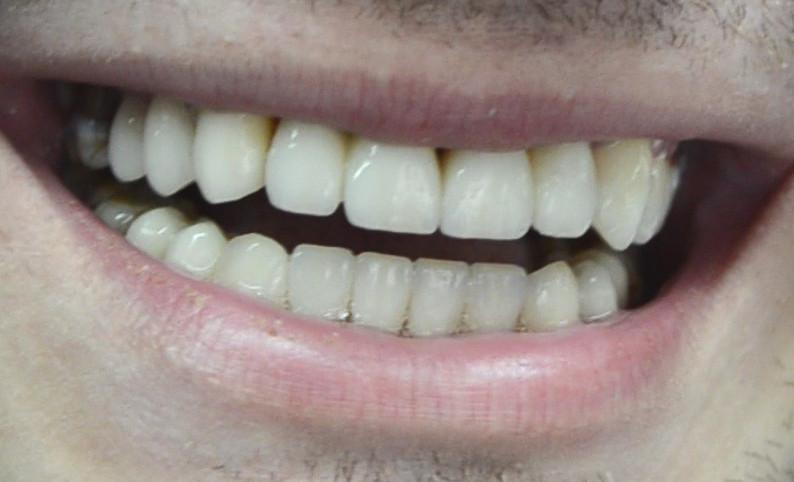 Estetica dentară, zâmbet perfect, Para-Luxadent