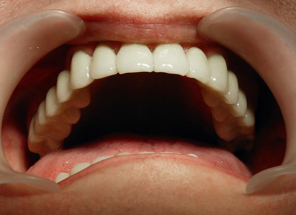 Arcada dentară superioară reconstruită cu punti dentare ceramice pe suport de zirconiu