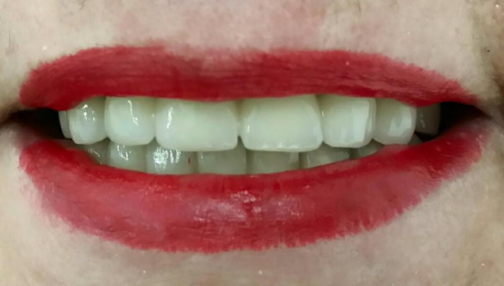 Lucrări dentare metalo-ceramice, zâmbet final