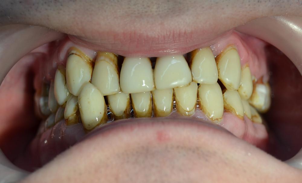 Pete, discromie dentară