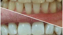 Un zâmbet mai frumos cu o albire dentară profesională