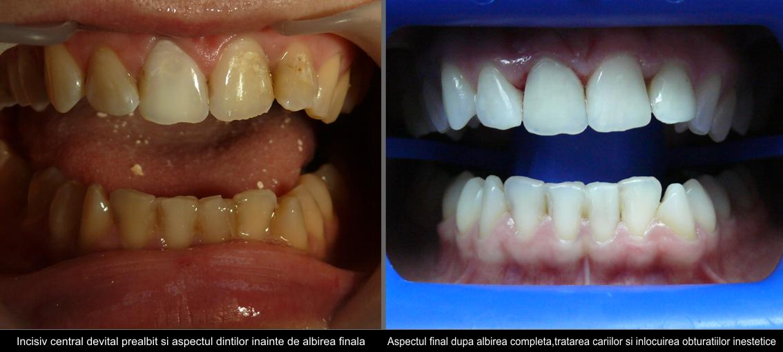 Sbiancamento dentale+dente devital