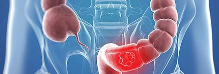 exame cancer colon hereditario