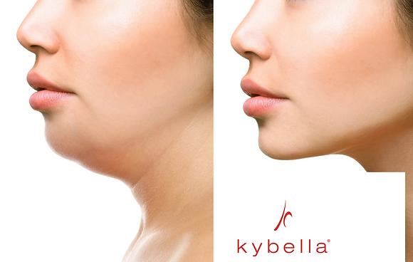 Kybella - 3 Vials Get 4th FREE