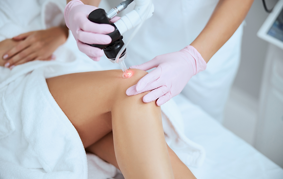 Laser Spider Vein Therapy - Package of 3
