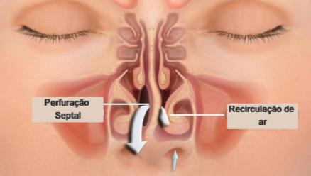 Mostra como a perfuracao septal ocasiona a obstrucao nasal