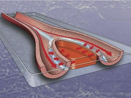 Electrical stimulation improves blood vessel permeability