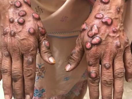 Identified: Driver of itch in prurigo nodularis