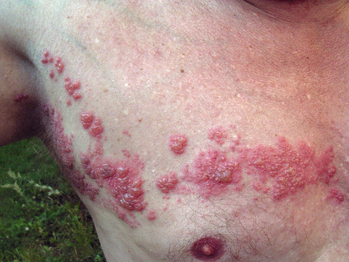 Herpes zoster more common in patients with psoriasis, with a higher incidence in those on biologics