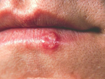 IL-1β involved in triggering herpes simplex flares