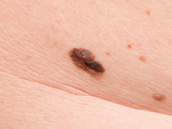 New test for melanoma may reduce need for biopsies