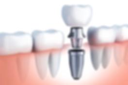 Implanes Dentales