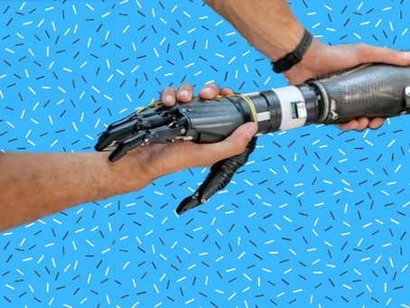 5 popular questions about prosthetic arms answered