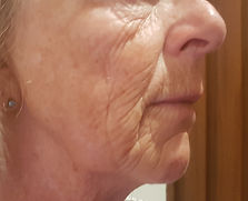 pigmentation picosure after S.jpg