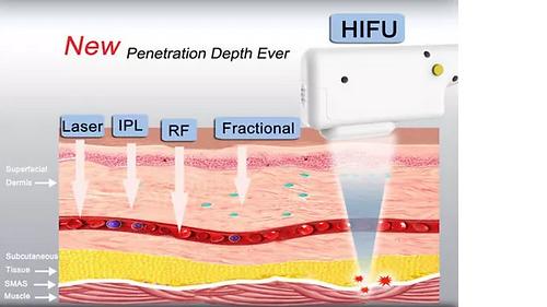 hifu depth diagram.png