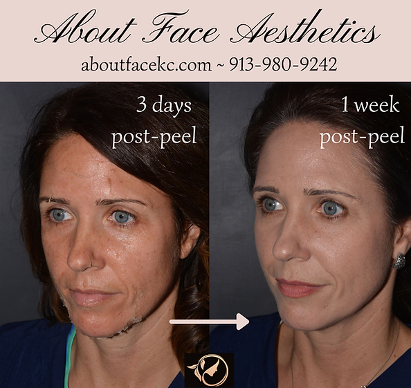 About Face Aesthetics (Facebook Cover).png