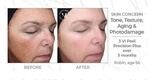 VI Peels Before and After Kansas City anti-aging