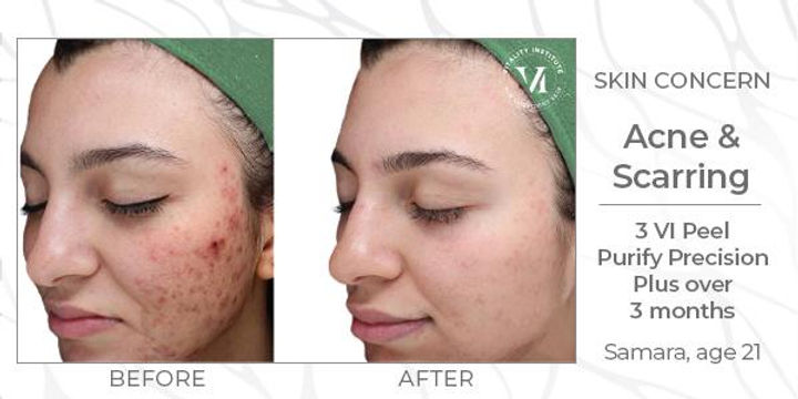 VI Peel anti-aging before and after