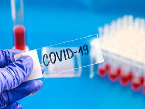 Madeira passa a 8 internados por Covid-19; hoje há mais 11 infeções