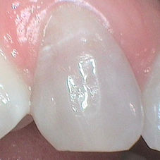 Discoloured tooth before bleachingg