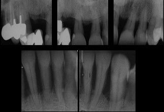 Preoperative radiographs of teeth