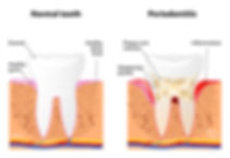 Schematic of healthy teeth and teeth with periodontitis