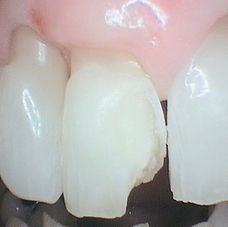 Cracked tooth as presented for treatment